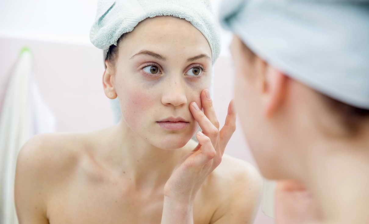 Cum să eliminați venele sub ochi
