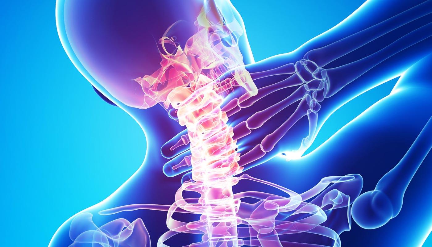 tratament pentru osteochondroza cervicală