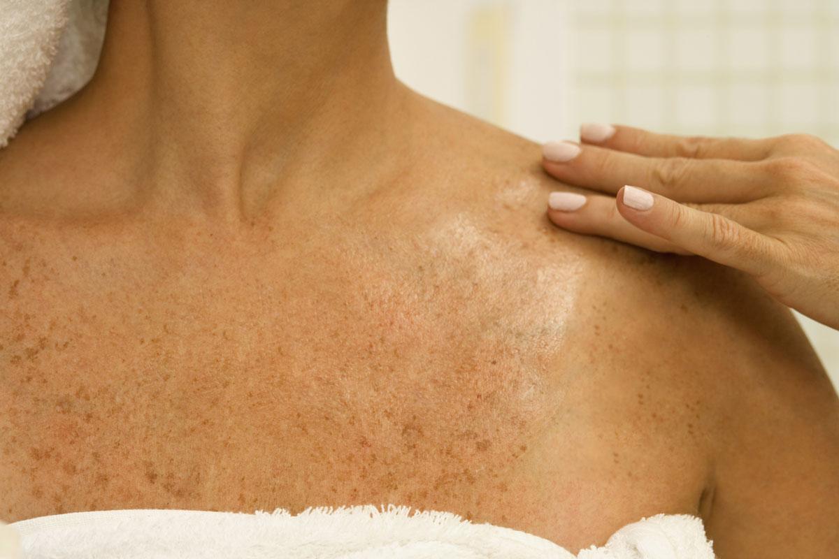 tratamentul pigmentării pielii în varicoză